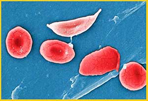 celulas-falciformes